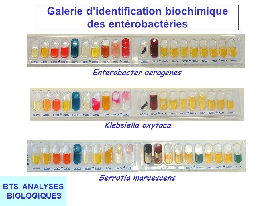 Galerie d'identification biochimique des entérobactéries