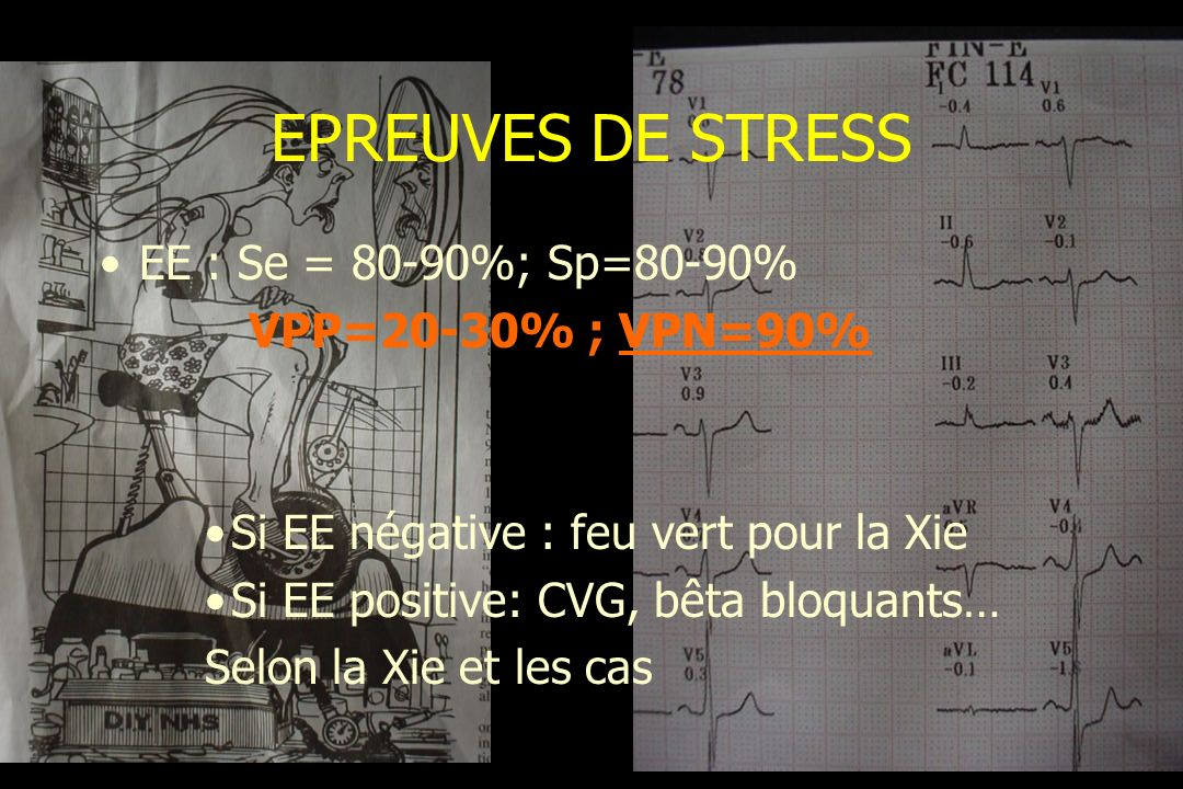 EPREUVES DE STRESS EE : Se = 80-90%; Sp=80-90% VPP=20-30% ; VPN=90%
