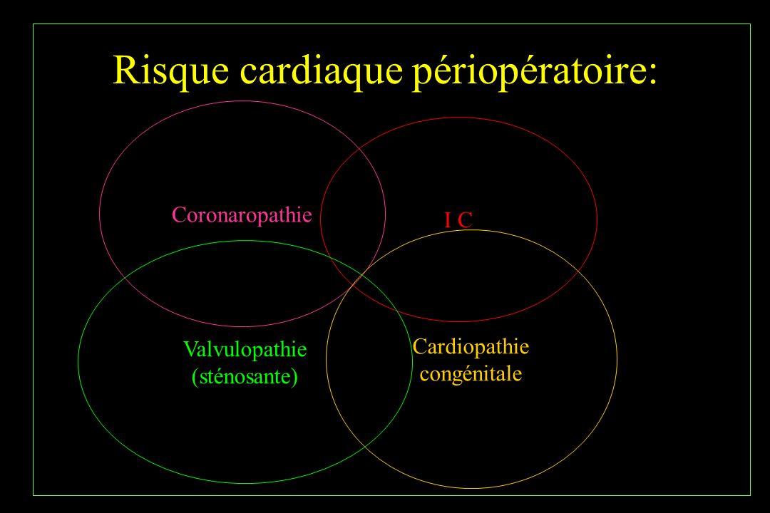 Risque cardiaque périopératoire: