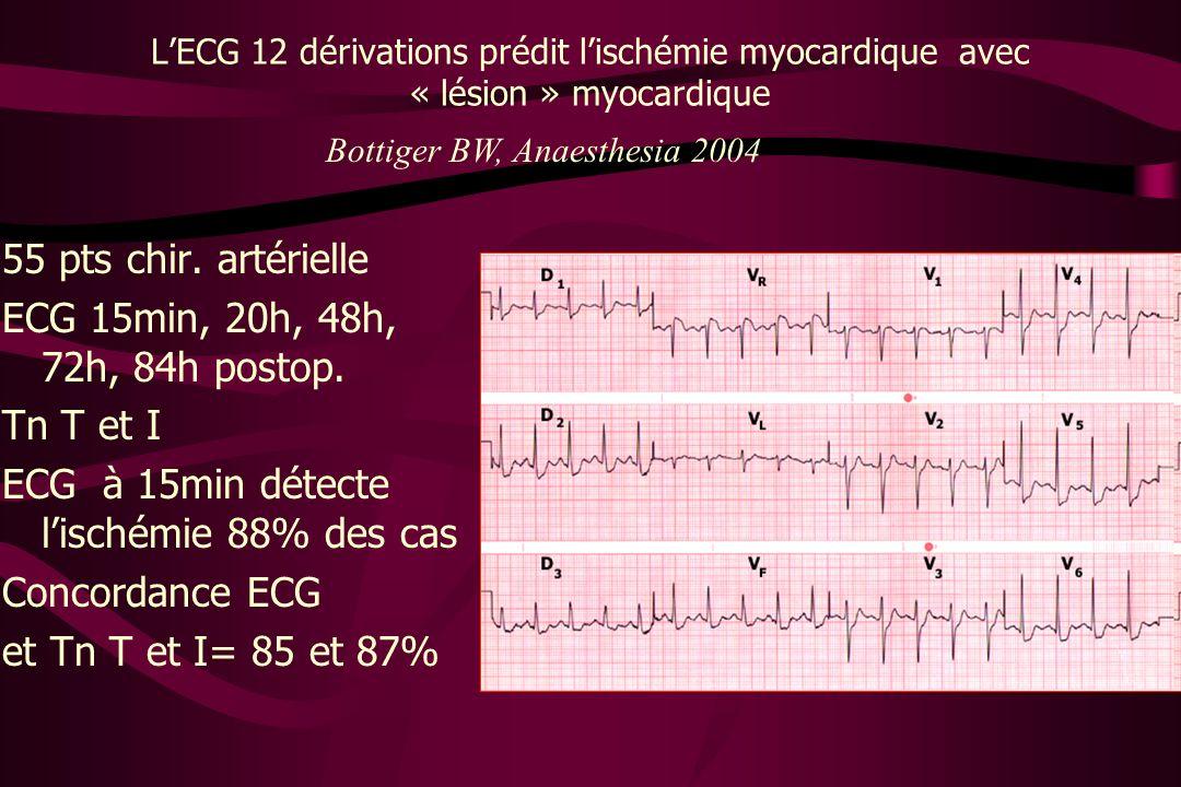 ECG à 15min détecte l'ischémie 88% des cas Concordance ECG