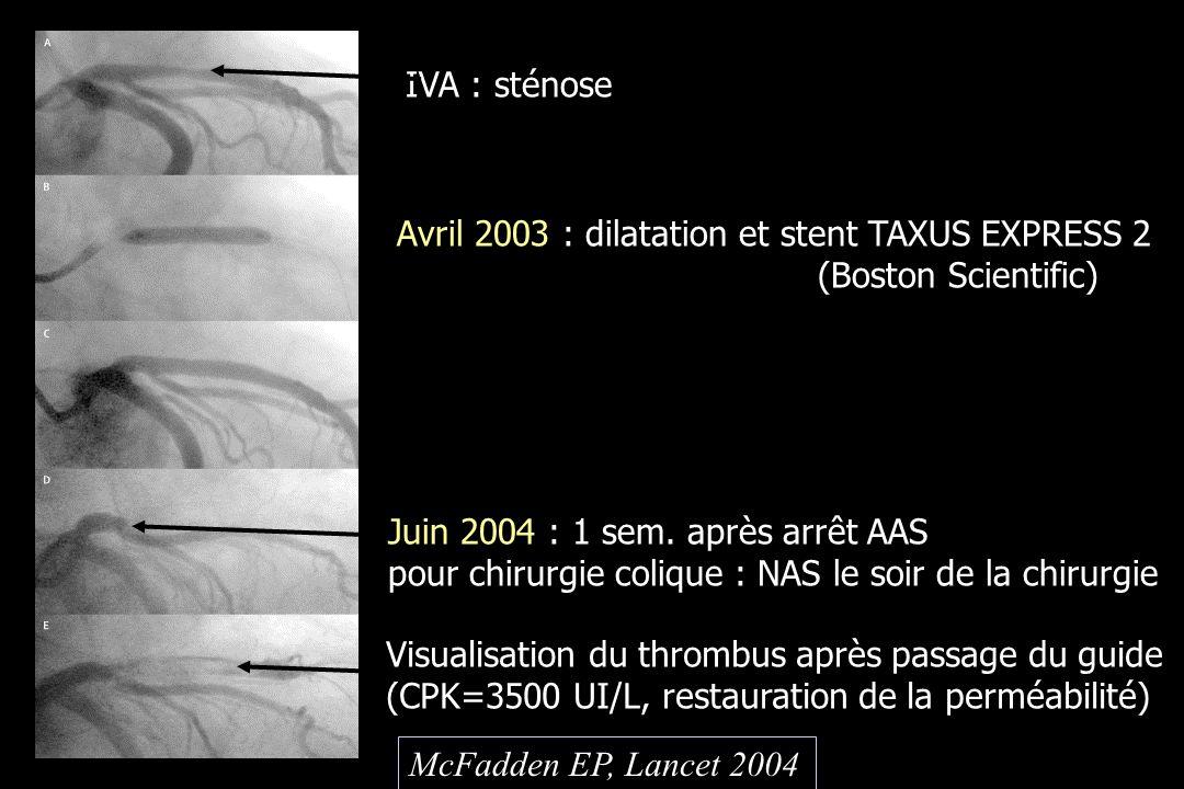 IVA : sténose Avril 2003 : dilatation et stent TAXUS EXPRESS 2. (Boston Scientific) Juin 2004 : 1 sem. après arrêt AAS.