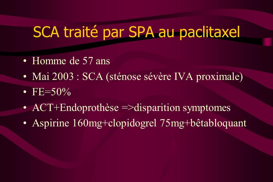 SCA traité par SPA au paclitaxel
