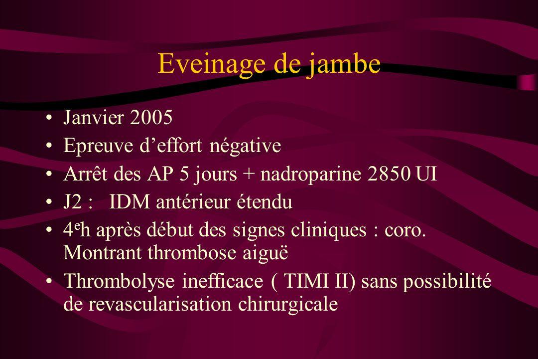 Eveinage de jambe Janvier 2005 Epreuve d'effort négative