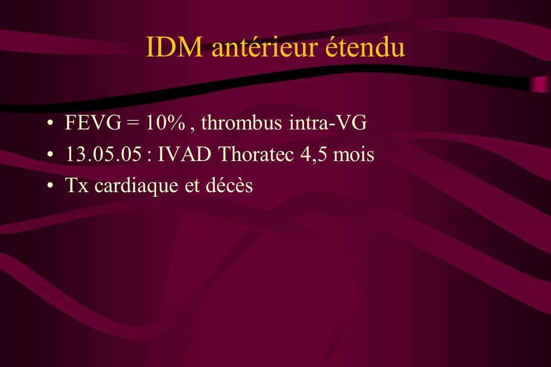 IDM antérieur étendu FEVG = 10% , thrombus intra-VG