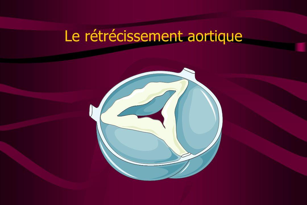Le rétrécissement aortique