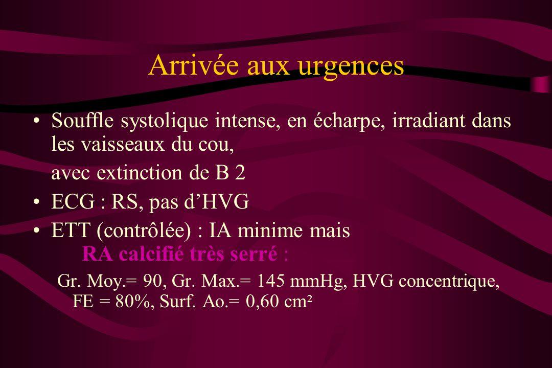 Arrivée aux urgencesSouffle systolique intense, en écharpe, irradiant dans les vaisseaux du cou, avec extinction de B 2.