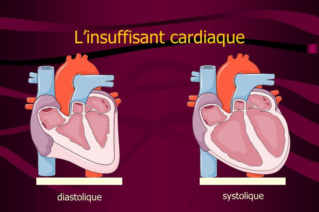 L'insuffisant cardiaque