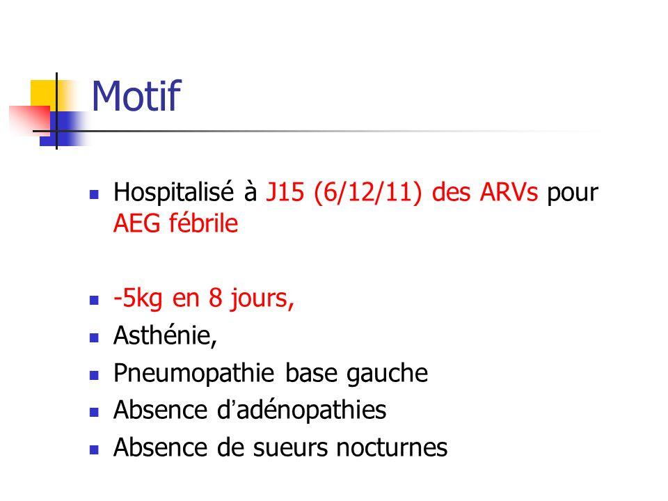 Motif Hospitalisé à J15 (6/12/11) des ARVs pour AEG fébrile