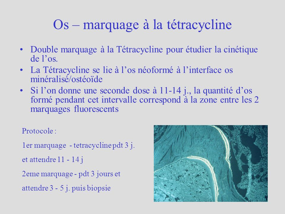 Os – marquage à la tétracycline