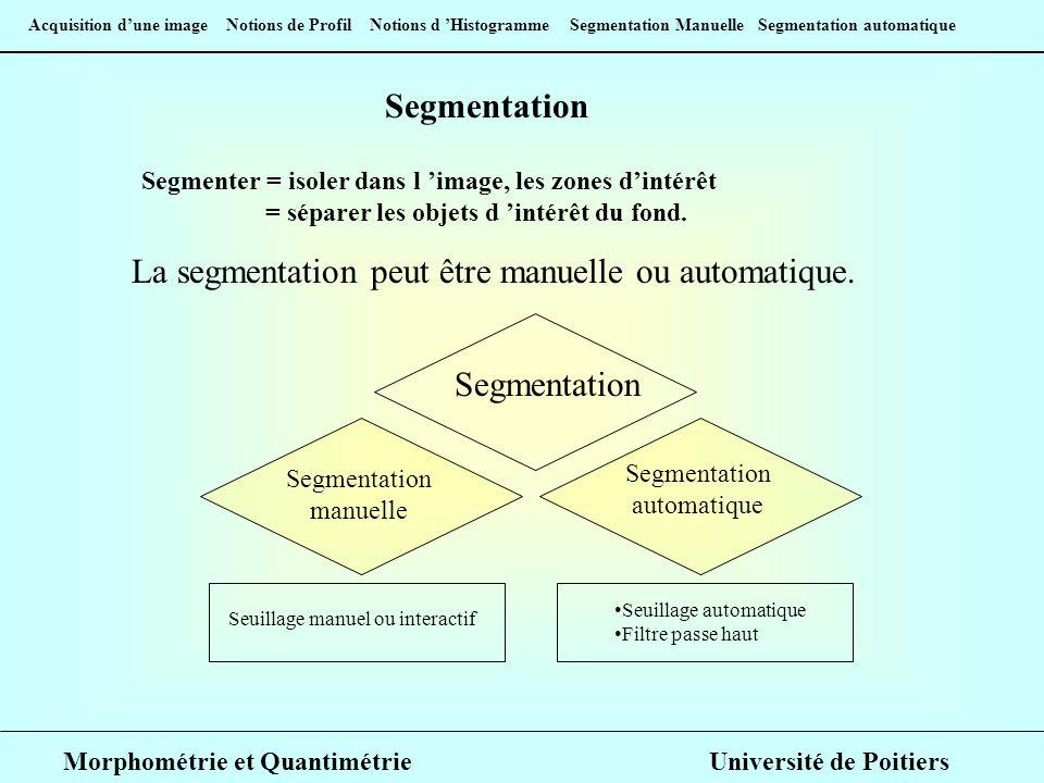 La segmentation peut être manuelle ou automatique.
