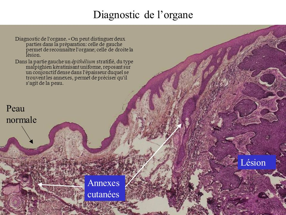 Diagnostic de l'organe