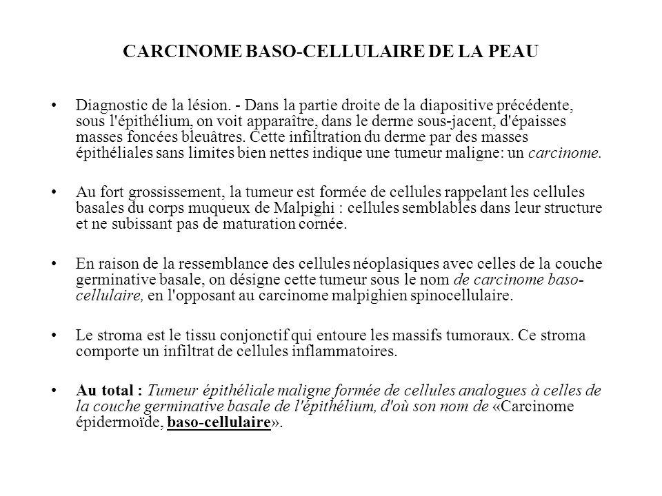CARCINOME BASO-CELLULAIRE DE LA PEAU