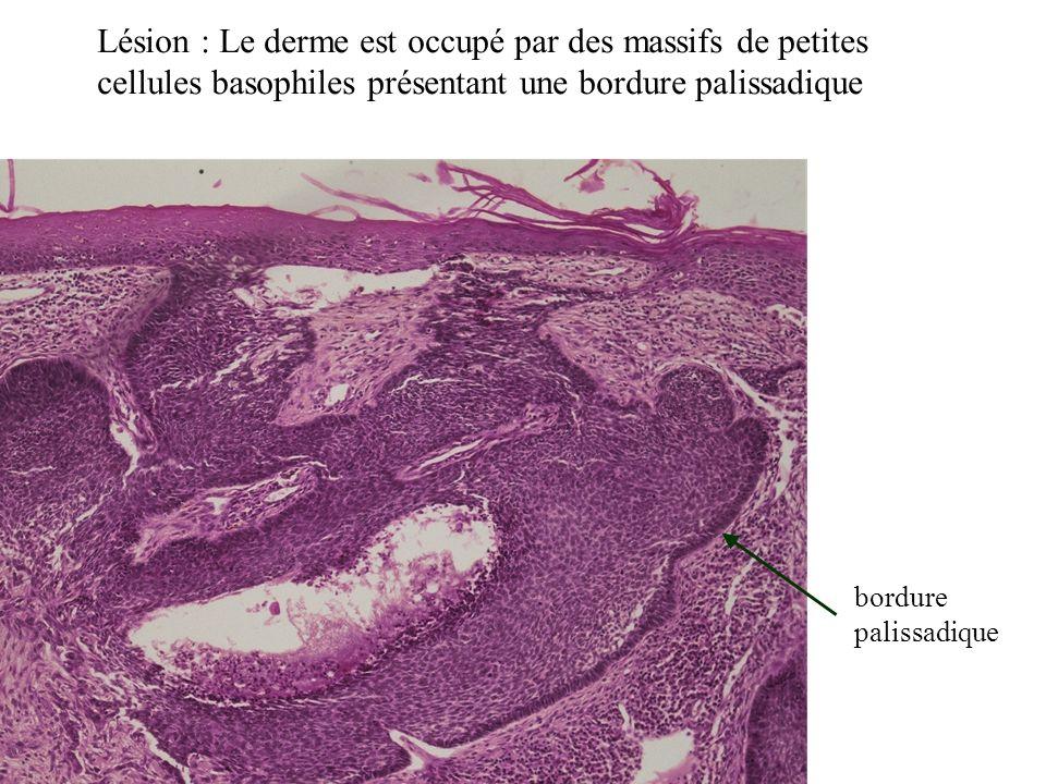 Lésion : Le derme est occupé par des massifs de petites cellules basophiles présentant une bordure palissadique