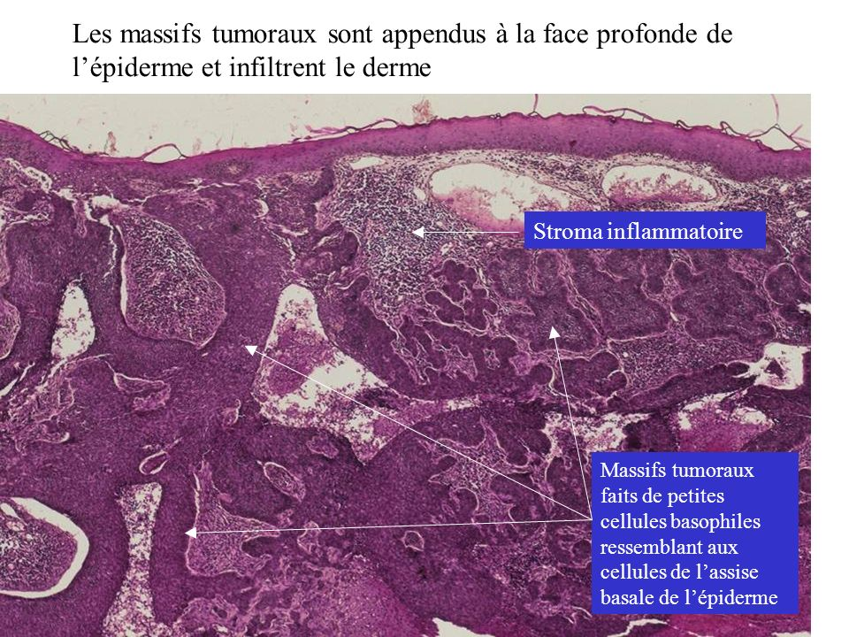 Les massifs tumoraux sont appendus à la face profonde de l'épiderme et infiltrent le derme