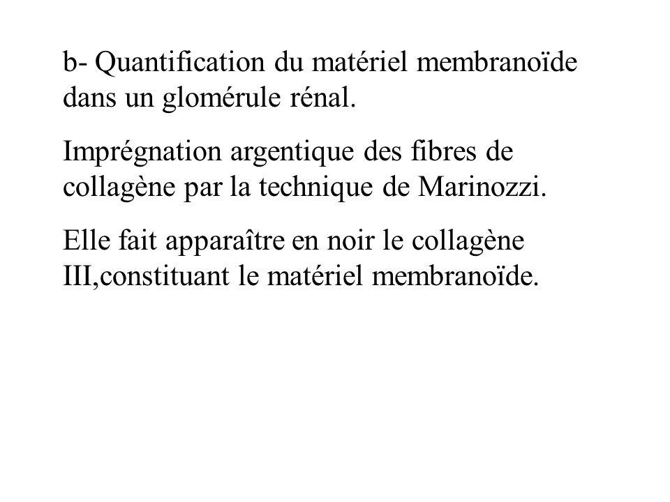 b- Quantification du matériel membranoïde dans un glomérule rénal.
