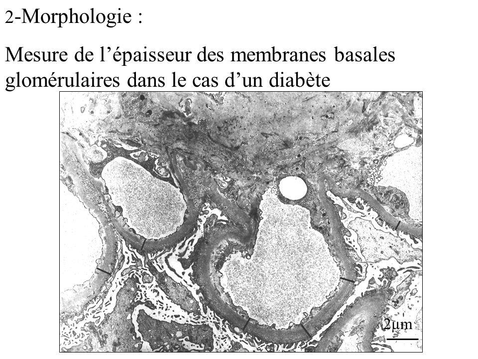 2-Morphologie : Mesure de l'épaisseur des membranes basales glomérulaires dans le cas d'un diabète.