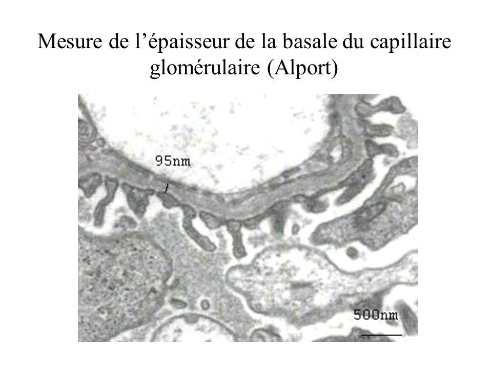 Mesure de l'épaisseur de la basale du capillaire glomérulaire (Alport)