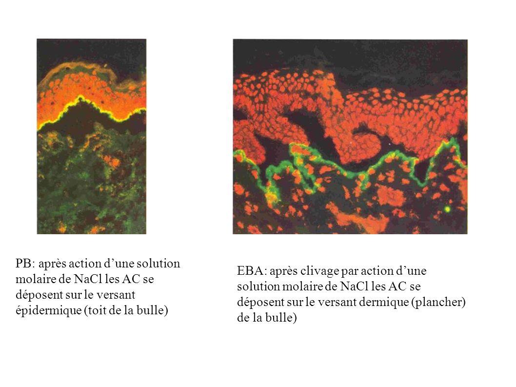PB: après action d'une solution molaire de NaCl les AC se déposent sur le versant épidermique (toit de la bulle)