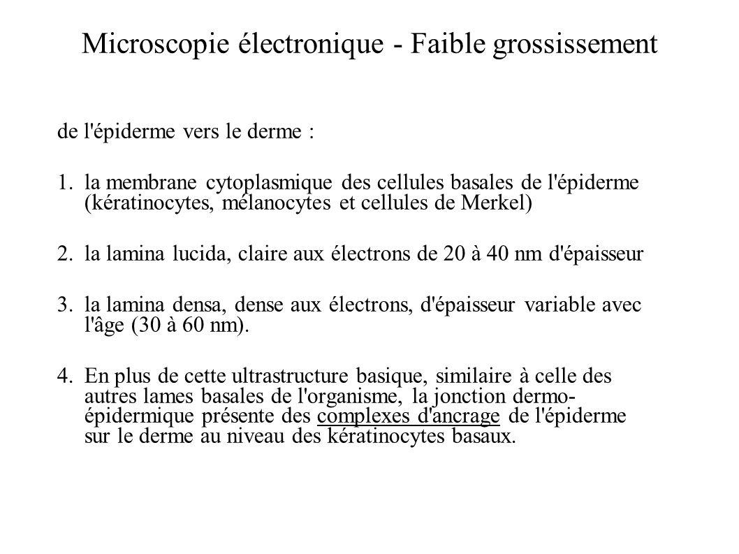 Microscopie électronique - Faible grossissement