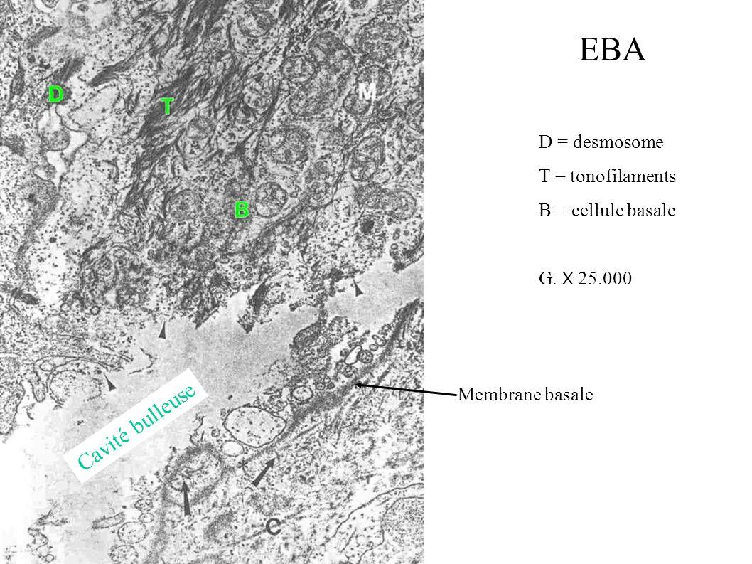 EBA Cavité bulleuse D = desmosome T = tonofilaments B = cellule basale