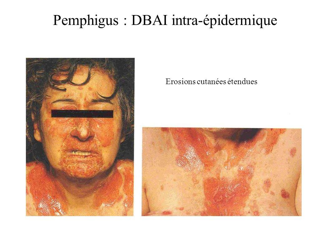 Pemphigus : DBAI intra-épidermique