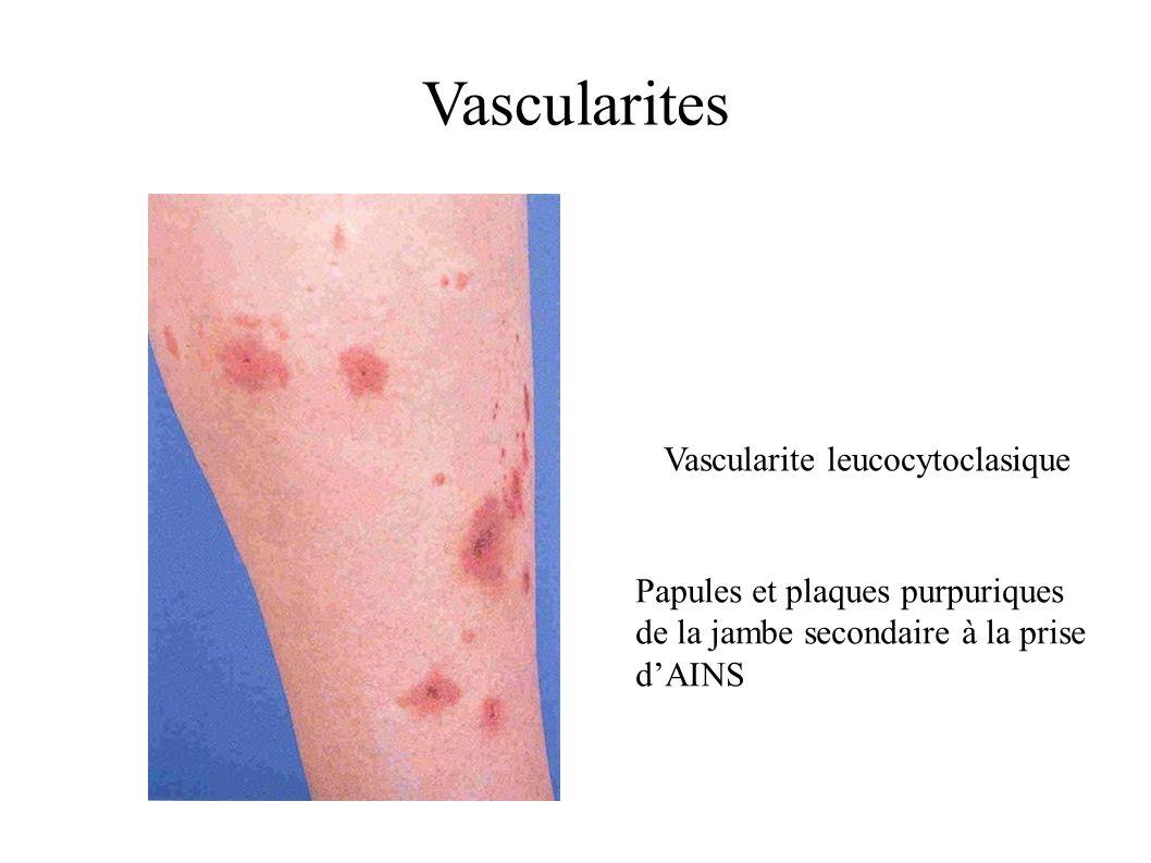 Vascularite leucocytoclasique
