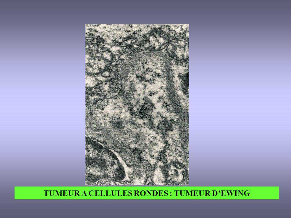 TUMEUR A CELLULES RONDES : TUMEUR D'EWING
