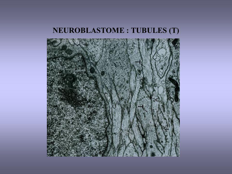 NEUROBLASTOME : TUBULES (T)