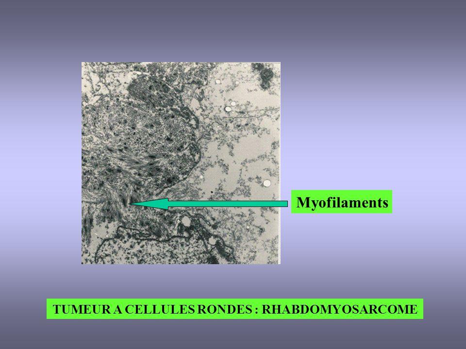 TUMEUR A CELLULES RONDES : RHABDOMYOSARCOME