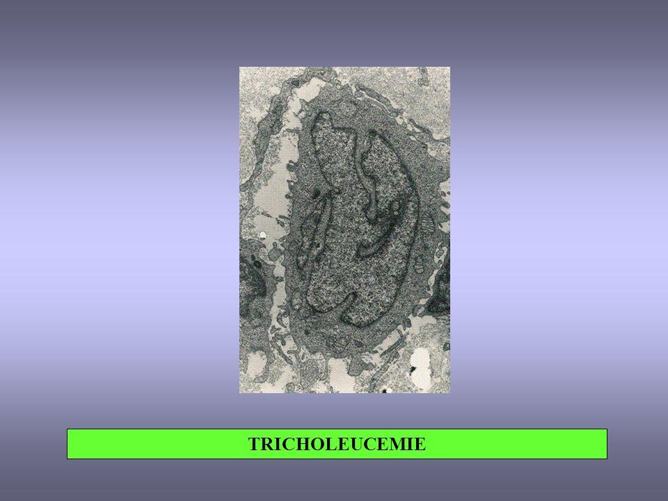 TRICHOLEUCEMIE