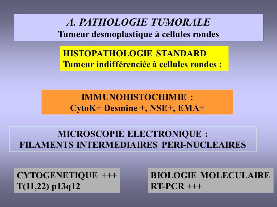 A. PATHOLOGIE TUMORALE Tumeur desmoplastique à cellules rondes