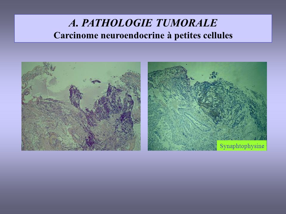 Carcinome neuroendocrine à petites cellules