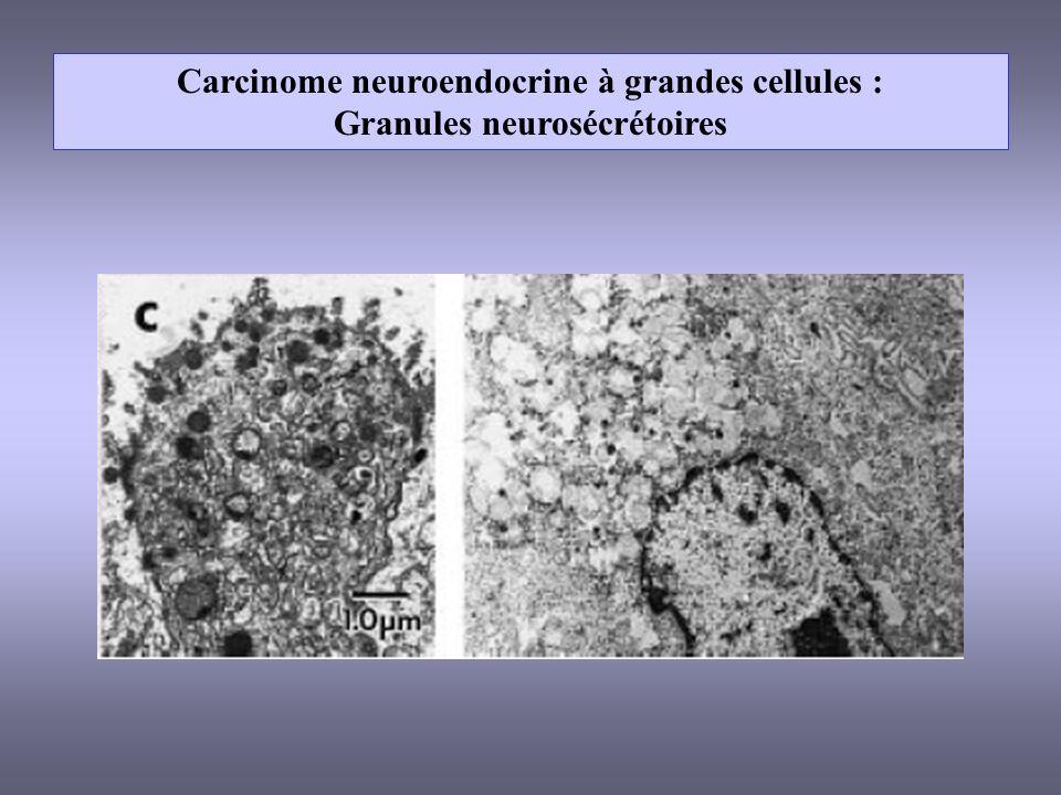 Carcinome neuroendocrine à grandes cellules :