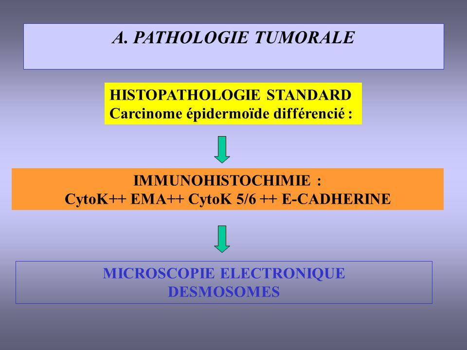CytoK++ EMA++ CytoK 5/6 ++ E-CADHERINE MICROSCOPIE ELECTRONIQUE