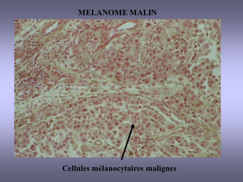 Cellules mélanocytaires malignes