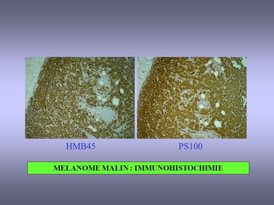 MELANOME MALIN : IMMUNOHISTOCHIMIE