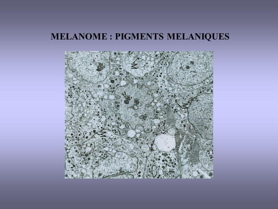 MELANOME : PIGMENTS MELANIQUES