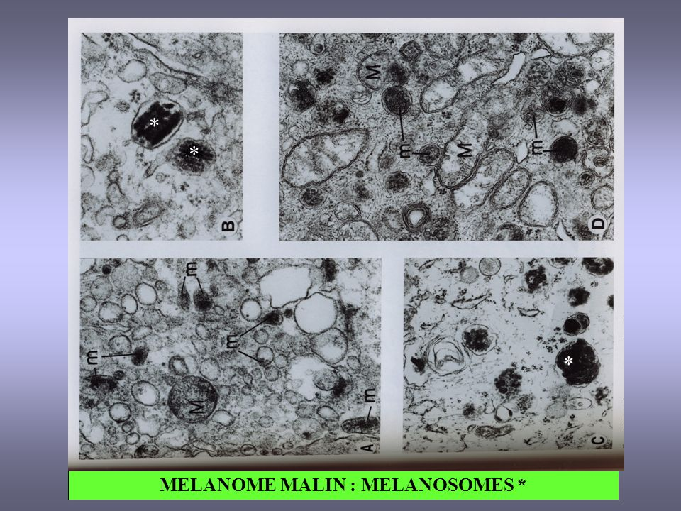 MELANOME MALIN : MELANOSOMES *