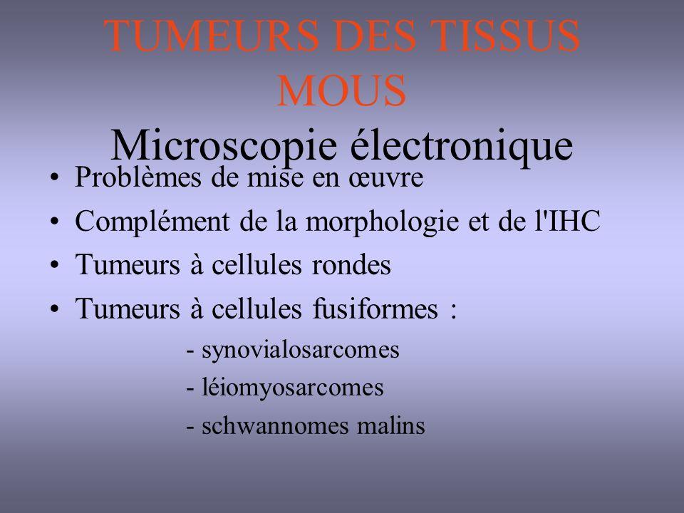 TUMEURS DES TISSUS MOUS Microscopie électronique
