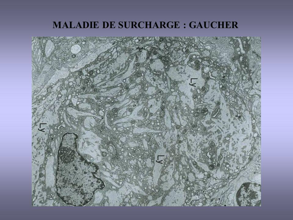 MALADIE DE SURCHARGE : GAUCHER