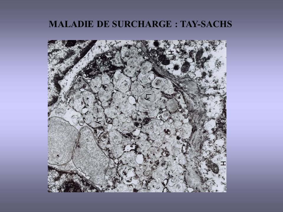 MALADIE DE SURCHARGE : TAY-SACHS