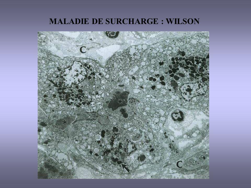 MALADIE DE SURCHARGE : WILSON