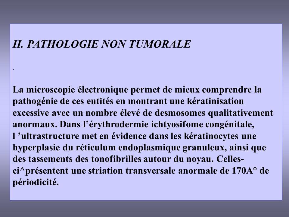II. PATHOLOGIE NON TUMORALE