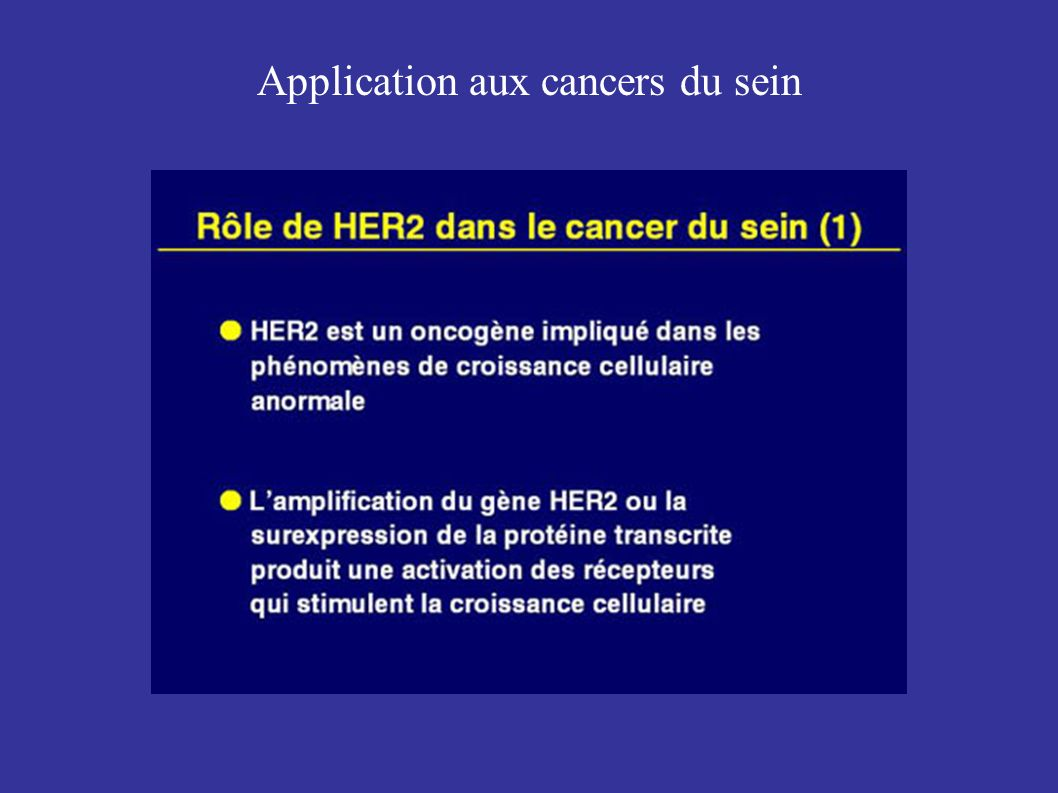 Application aux cancers du sein