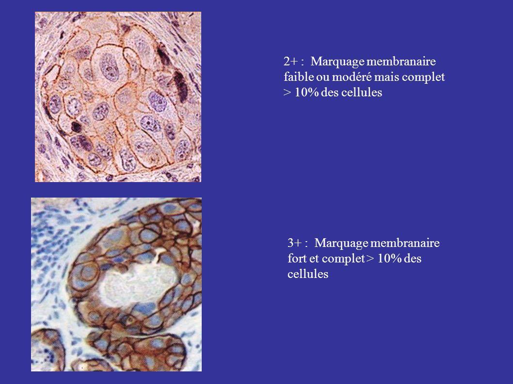 2+ : Marquage membranaire faible ou modéré mais complet > 10% des cellules
