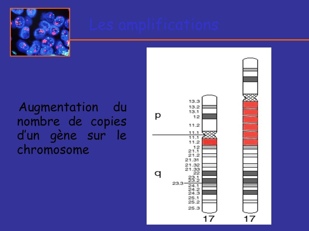Les amplifications Augmentation du nombre de copies d'un gène sur le chromosome