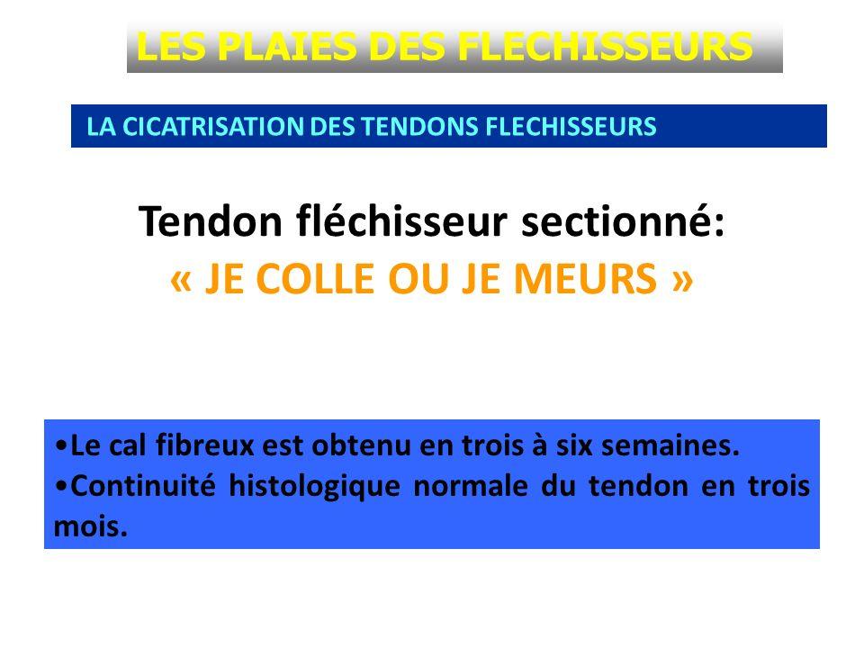 Tendon fléchisseur sectionné: