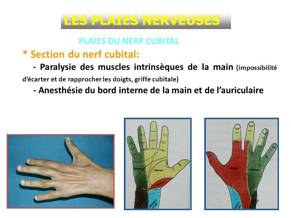 LES PLAIES NERVEUSES * Section du nerf cubital: PLAIES DU NERF CUBITAL