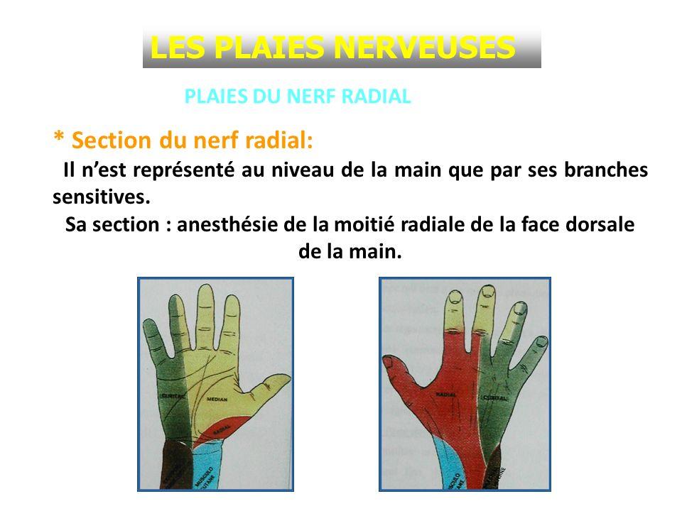 LES PLAIES NERVEUSES * Section du nerf radial: PLAIES DU NERF RADIAL
