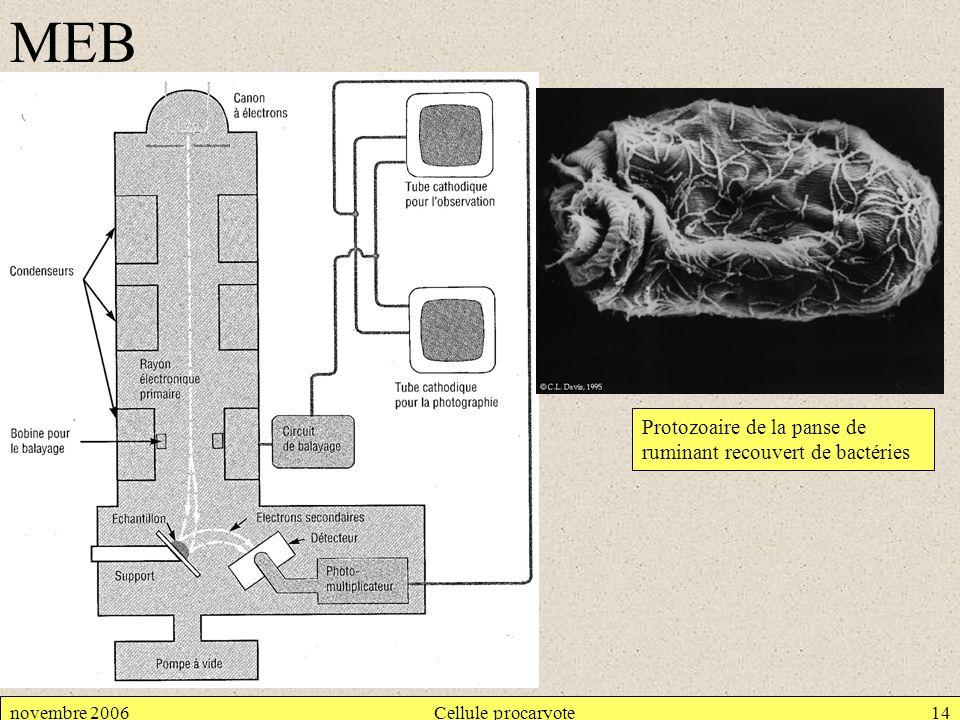 MEB Protozoaire de la panse de ruminant recouvert de bactéries